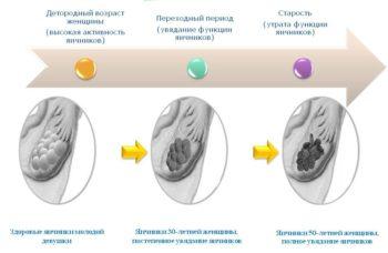 Как меняются яичники с возрастом