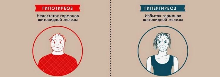 Отличия гипотиреоза и гипертиреоза
