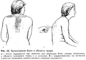 Причины болей в груди