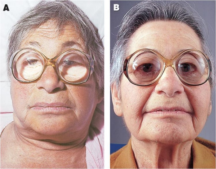 Проявление отеков при гипотиреозе