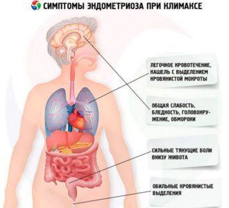 Симптомы эндометриоза при климаксе