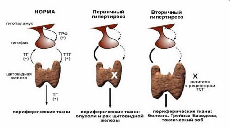 Как выглядит здоровая и больная щитовидная железа