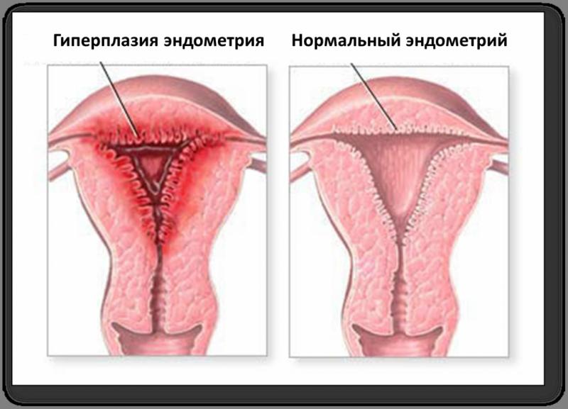 Гиперплазия эндометрия в менопаузе симптомы лечение