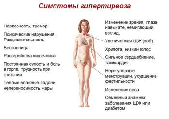 Симптомы гипертиреоза