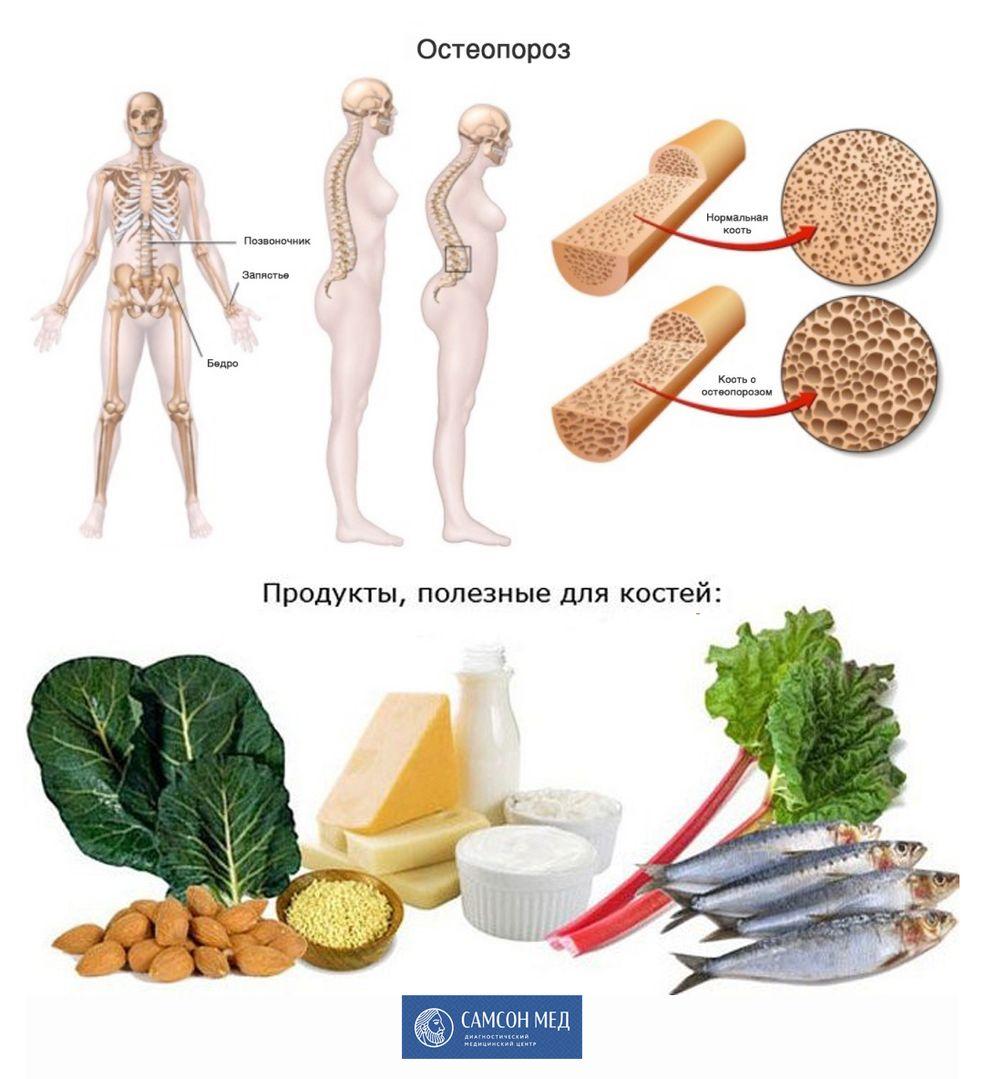 Остеопороз и полезные продукты