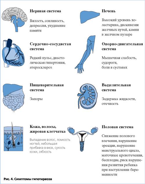 заболевание гипотиреозом