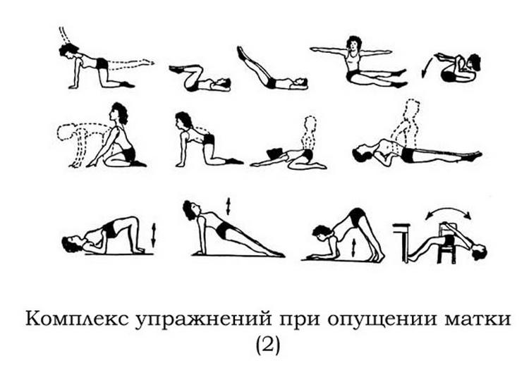 Упражнения бубновского при миоме 2