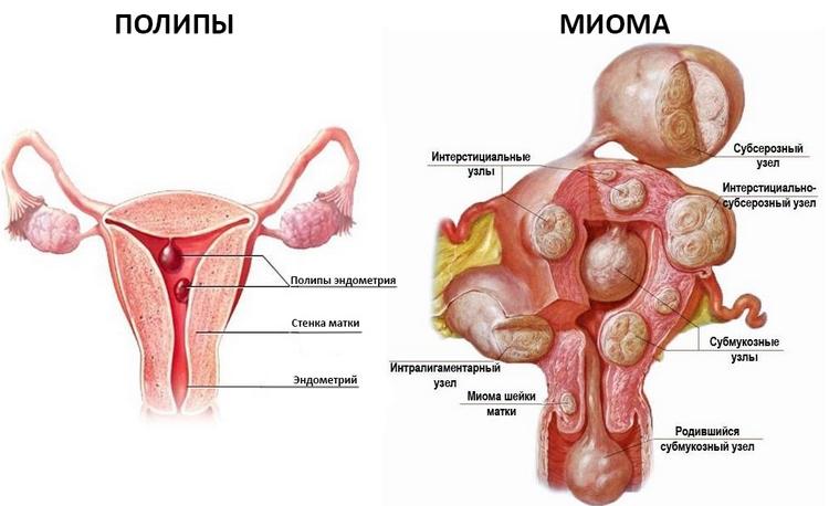 Эхографические признаки миомы матки
