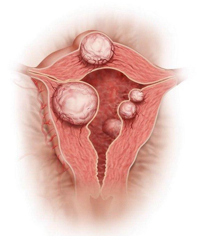 Миома матки - симптомы и признаки. Что это такое и как лечить у женщин?