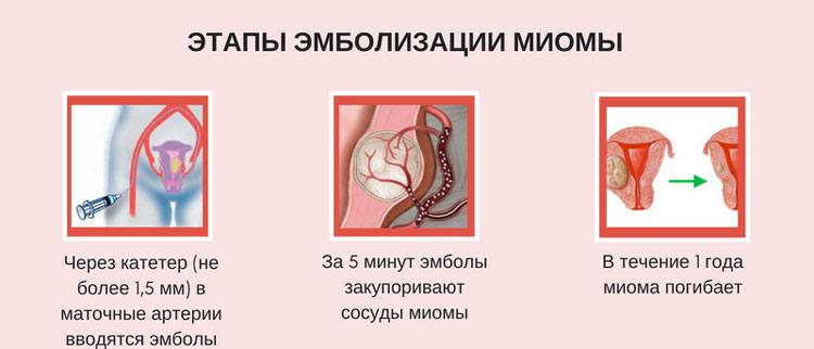 Этапы эмболизации миомы