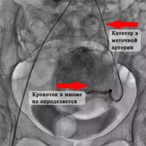 Ангиографическая эмболизация артерий