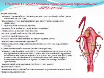 Прекращение гормональной контрацепции - показания