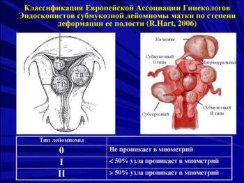 Виды субмукозной миомы матки