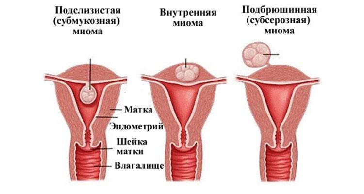 Типы миомы матки